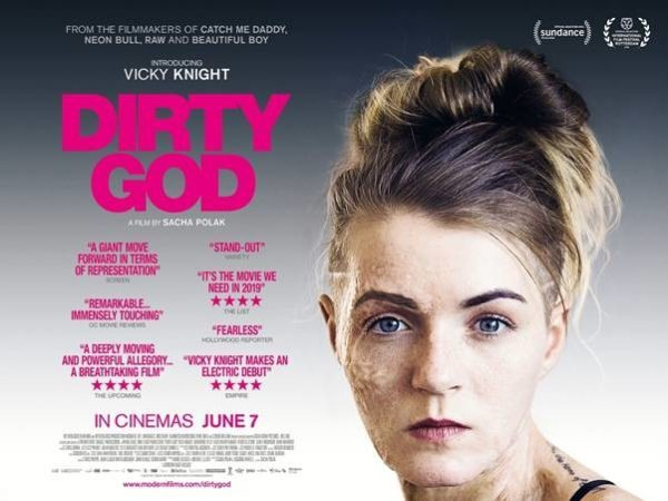 Acid attack drama Dirty God gets a poster and trailer