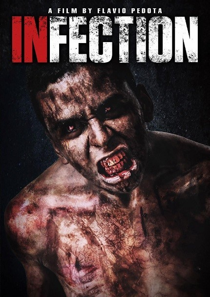 Infection-thumb-430xauto-78034