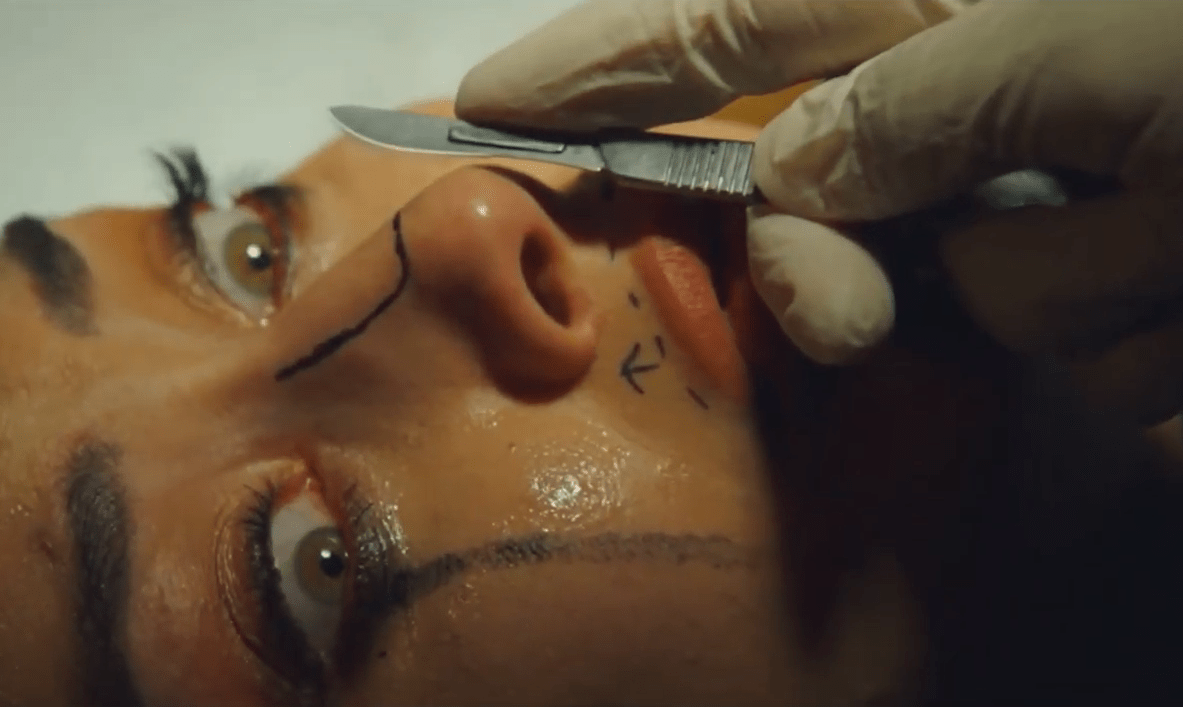 Watch an exclusive clip from horror film Incision